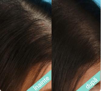 Bliss Hair – opiniile utilizatorilor