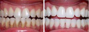 Denta Seal – păreri de la utilizatori