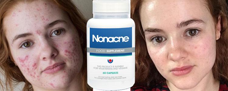 Care sunt ingredientele Nonacne? Sunt eficiente?